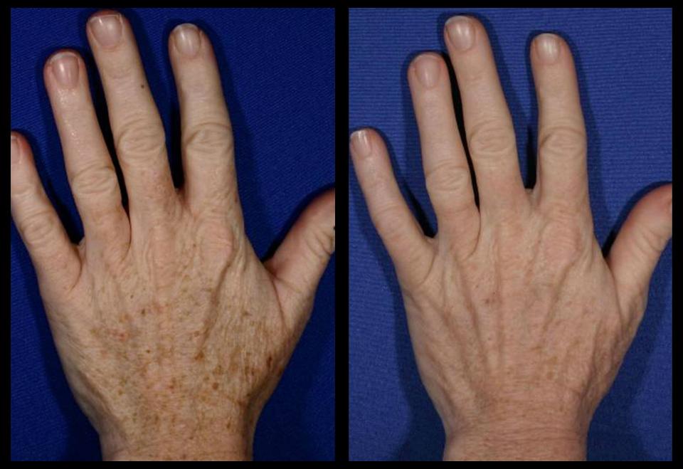 Cirugía de mano en Monterrey