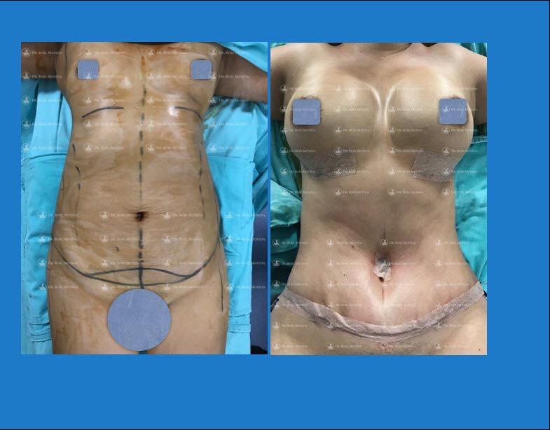abdominoplastia en monterrey - antes y despues