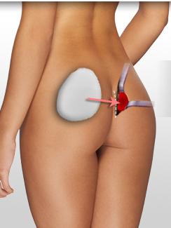 aumento de gluteos en monterrey con implantes