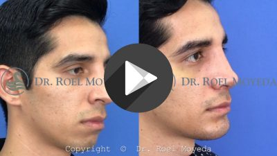 Cirugia-de-Perfil-Facial-400x225 Videos