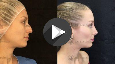 Tecnicas-Avanzadas-de-Rinoplastia-400x225 Videos