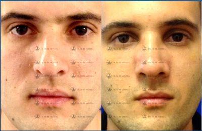 232-cirugia-nariz-monterrey-rinoplastia-roel-moyeda-400x261 Casos de Rinoplastia Estética