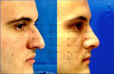233-cirugia-nariz-monterrey-rinoplastia-roel-moyeda-400x260 Casos de Rinoplastia Estética