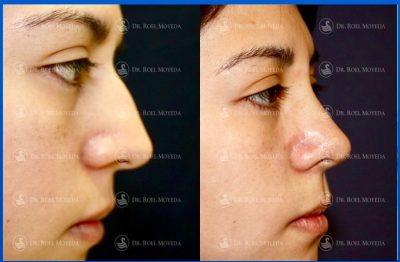 237-cirugia-nariz-monterrey-rinoplastia-roel-moyeda-400x262 Casos de Rinoplastia Estética
