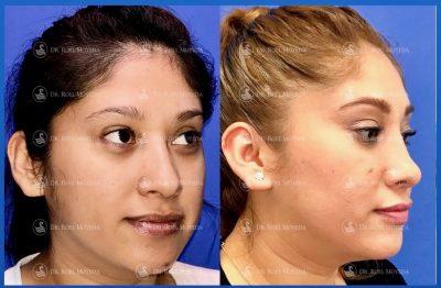 242-cirugia-nariz-monterrey-rinoplastia-roel-moyeda-400x262 Casos de Rinoplastia Estética