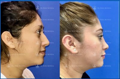 243-cirugia-nariz-monterrey-rinoplastia-roel-moyeda-400x262 Casos de Rinoplastia Estética