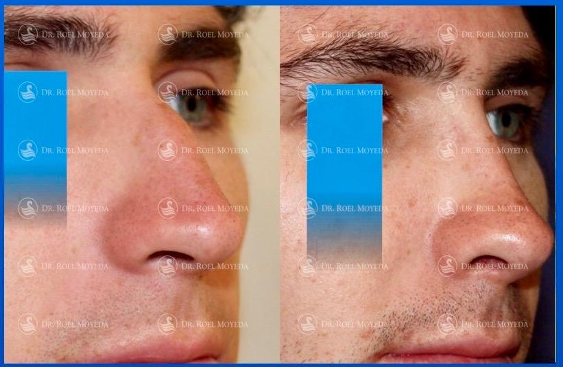 244-cirugia-nariz-monterrey-rinoplastia-roel-moyeda Rinoplastia Caso #145: Canon Masculino