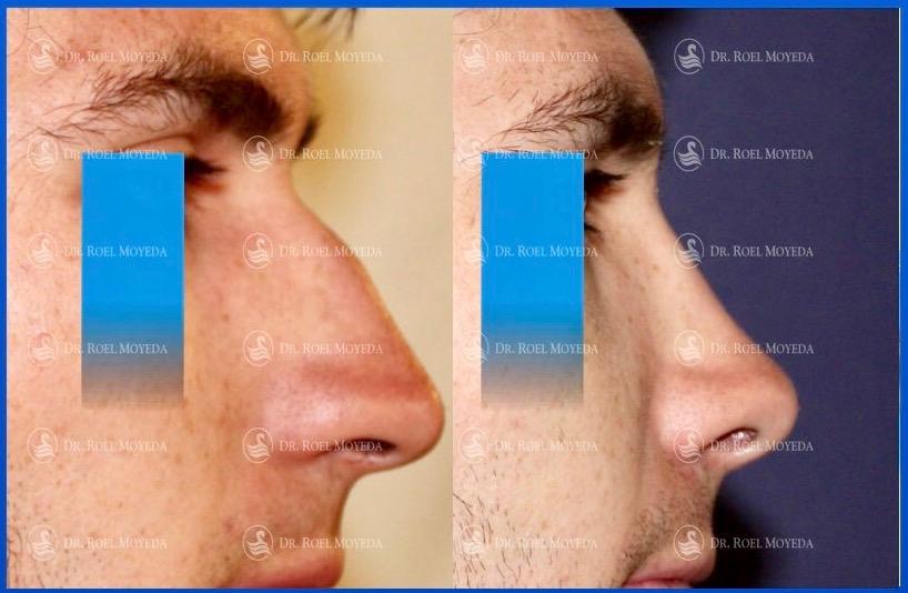 245-cirugia-nariz-monterrey-rinoplastia-roel-moyeda Rinoplastia Caso #146: Técnica Abierta Vs. Cerrada