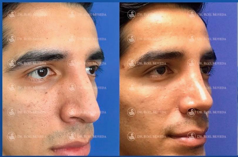 246-cirugia-nariz-monterrey-rinoplastia-roel-moyeda Rinoplastia Caso #147: Cuando hay insatisfacción estética