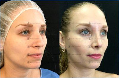 248-cirugia-nariz-monterrey-rinoplastia-roel-moyeda-400x261 Casos de Rinoplastia Estética
