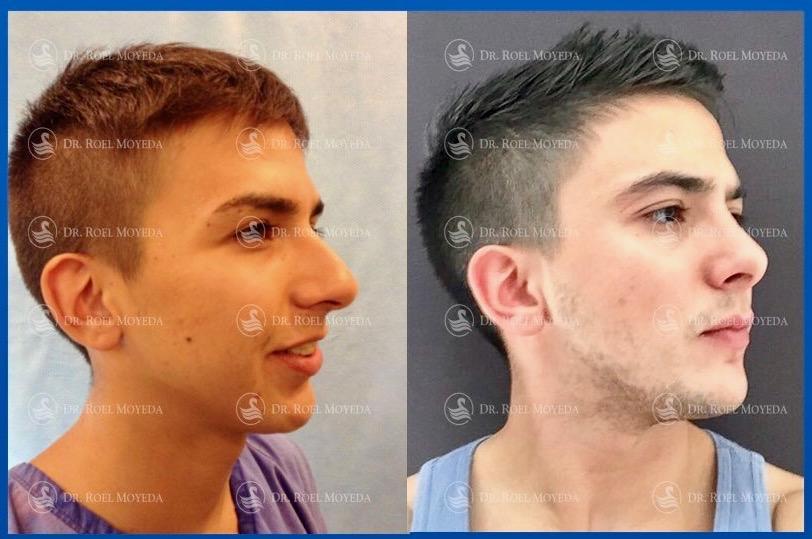 Advise estetica facial aumento de menton think, you