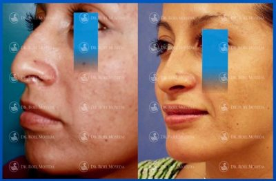 269-cirugia-nariz-monterrey-rinoplastia-roel-moyeda-400x262 Casos de Perfiloplastia