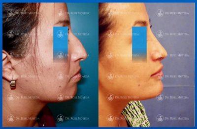 270-cirugia-nariz-monterrey-rinoplastia-roel-moyeda-400x263 Casos de Perfiloplastia