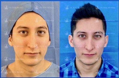 271-cirugia-nariz-monterrey-rinoplastia-roel-moyeda-400x262 Casos de Perfiloplastia
