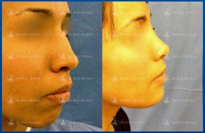 275-cirugia-nariz-monterrey-rinoplastia-roel-moyeda-400x260 Casos de Perfiloplastia