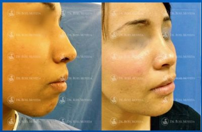 276-cirugia-nariz-monterrey-rinoplastia-roel-moyeda-400x263 Casos de Perfiloplastia