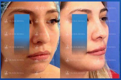 280-cirugia-nariz-monterrey-rinoplastia-roel-moyeda-400x265 Casos de Perfiloplastia