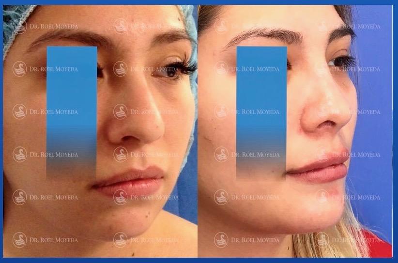 280-cirugia-nariz-monterrey-rinoplastia-roel-moyeda Perfiloplastia Caso #30: Nariz, Bichat e Implante de Mentón