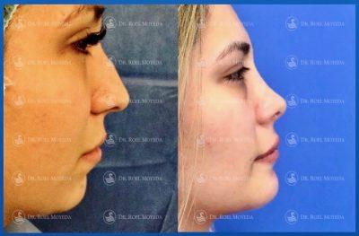 281-cirugia-nariz-monterrey-rinoplastia-roel-moyeda-400x263 Casos de Perfiloplastia