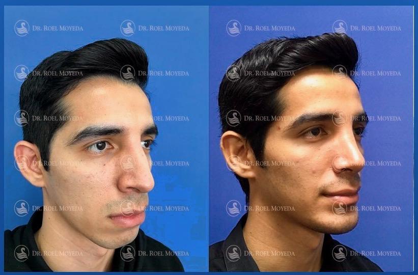 282-cirugia-nariz-monterrey-rinoplastia-roel-moyeda Perfiloplastia Caso #32: Nariz, Labios e Implante de Mentón