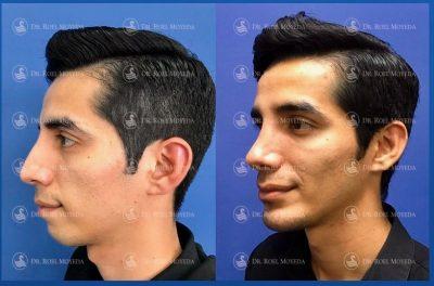 283-cirugia-nariz-monterrey-rinoplastia-roel-moyeda-400x264 Casos de Perfiloplastia