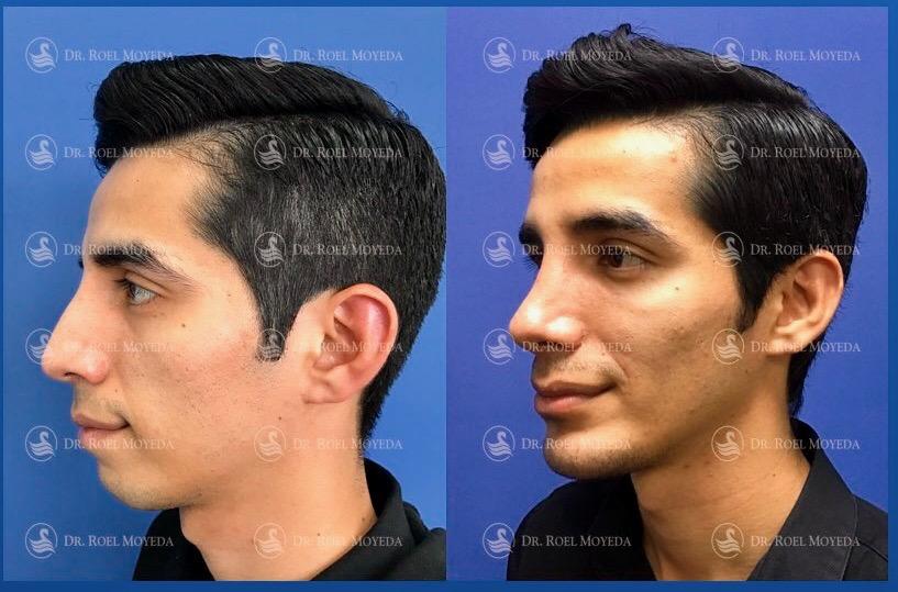 283-cirugia-nariz-monterrey-rinoplastia-roel-moyeda Perfiloplastia 33: Nariz, Labios e Implante de Mentón