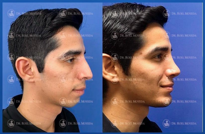 284-cirugia-nariz-monterrey-rinoplastia-roel-moyeda Perfiloplastia 34: Nariz, Labios e Implante de Mentón