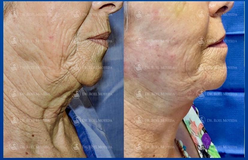 286-cirugia-nariz-monterrey-rinoplastia-roel-moyeda Cirugía plástica de la edad Caso #1: Estiramiento de Cara y Cuello (Lifting Facial)