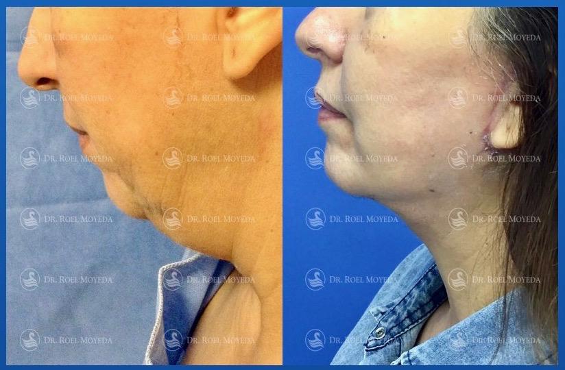 287-cirugia-nariz-monterrey-rinoplastia-roel-moyeda Cirugía plástica de la edad Caso #2: Estiramiento de Cara y Cuello (Lifting Facial)