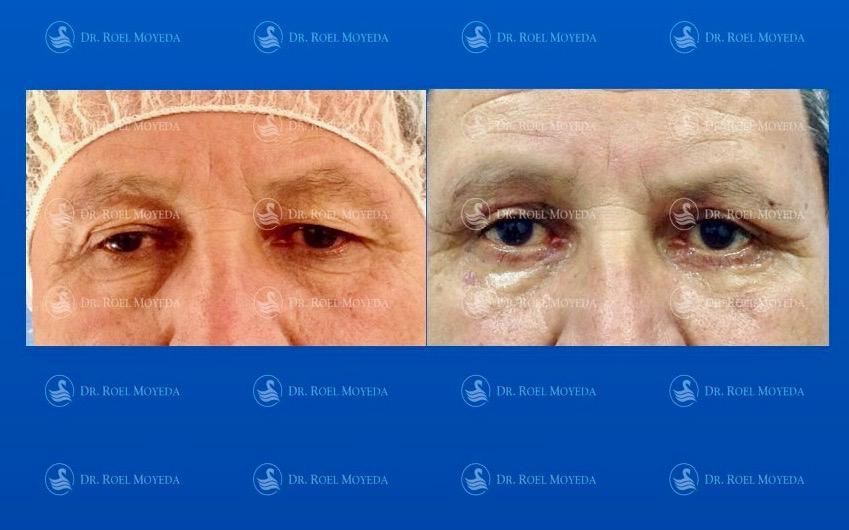 288-cirugia-nariz-monterrey-rinoplastia-roel-moyeda Cirugía plástica de la edad Caso #3: Rejuvenecimiento de Párpados (Blefaroplastia)