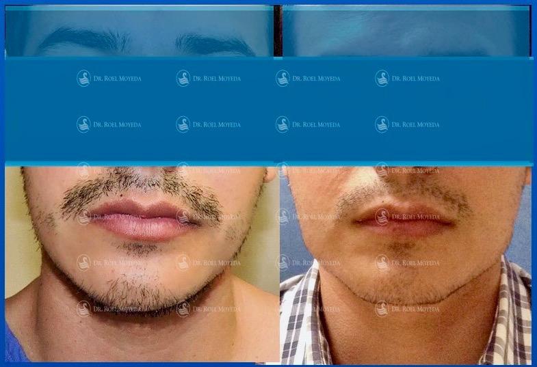 291-cirugia-nariz-monterrey-rinoplastia-roel-moyeda Implantes Mandibulares Caso #1: Mandíbula, Mentón, Bichat y Lipo de Cuello