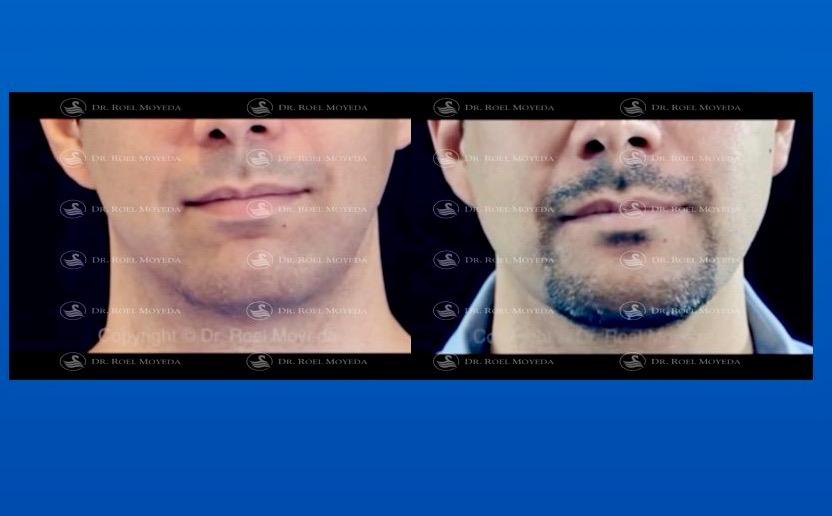 293-cirugia-nariz-monterrey-rinoplastia-roel-moyeda Implantes Mandibulares Caso #3: Mandíbula, Mentón, Bichat y Lipo de Cuello