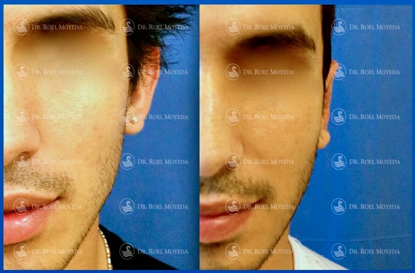 295-cirugia-nariz-monterrey-rinoplastia-roel-moyeda Otoplastia (Orejas prominentes) Caso #2