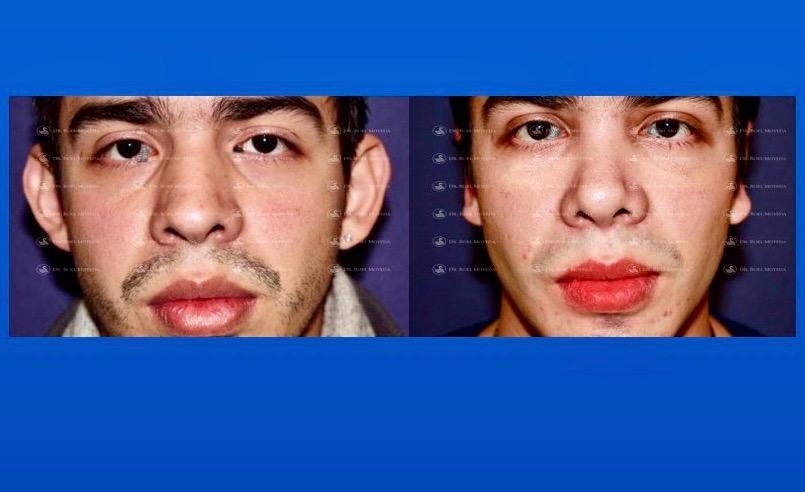 296-cirugia-nariz-monterrey-rinoplastia-roel-moyeda Otoplastia (Orejas prominentes) Caso #3
