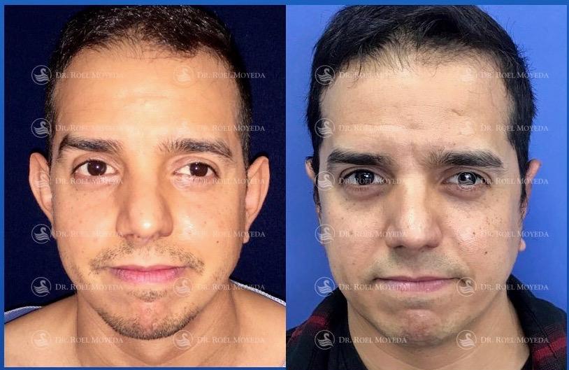 297-cirugia-nariz-monterrey-rinoplastia-roel-moyeda Otoplastia (Orejas prominentes) Caso #4