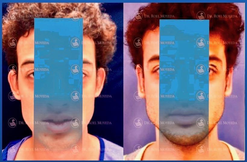 299-cirugia-nariz-monterrey-rinoplastia-roel-moyeda Otoplastia (Orejas prominentes) Caso #6