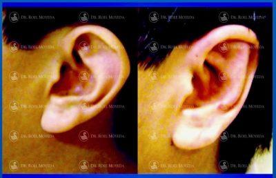 300-cirugia-nariz-monterrey-rinoplastia-roel-moyeda-400x258 Casos de Otoplastia