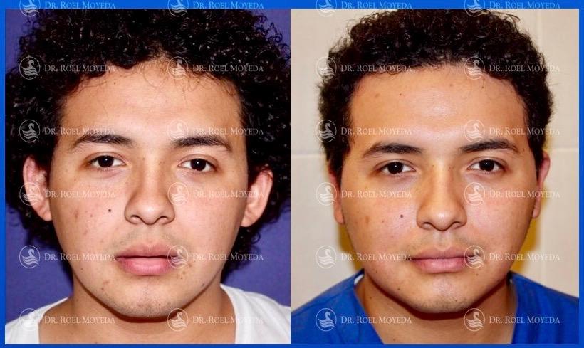 302-cirugia-nariz-monterrey-rinoplastia-roel-moyeda Otoplastia (Orejas prominentes) Caso #9