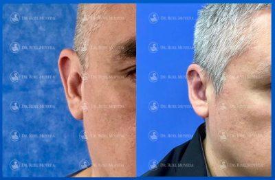 303-cirugia-nariz-monterrey-rinoplastia-roel-moyeda-400x262 Casos de Otoplastia