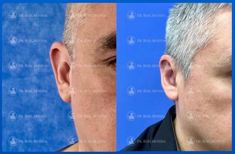 303-cirugia-nariz-monterrey-rinoplastia-roel-moyeda Otoplastia (Orejas prominentes) Caso #10