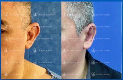 304-cirugia-nariz-monterrey-rinoplastia-roel-moyeda-400x262 Casos de Otoplastia