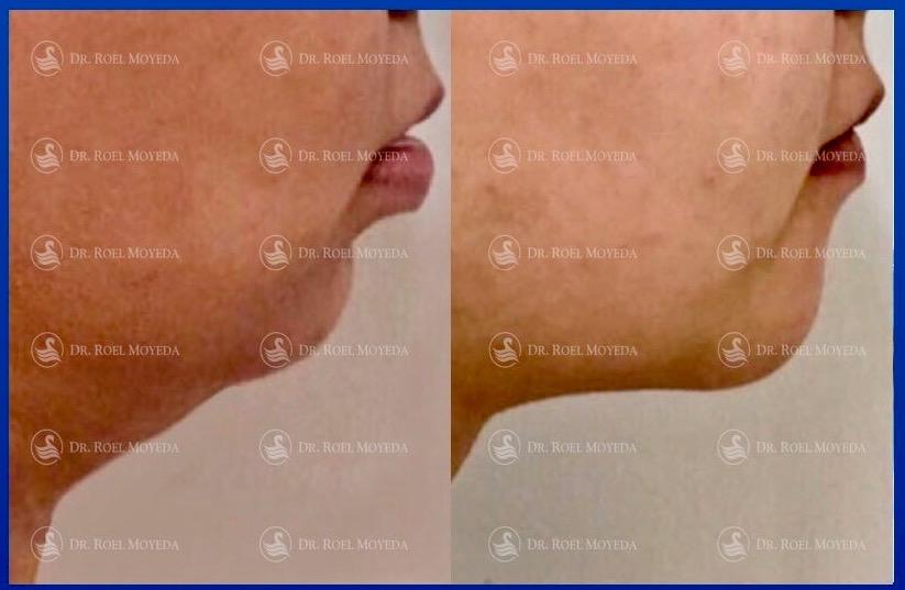 306-cirugia-nariz-monterrey-rinoplastia-roel-moyeda Mentoplastia Caso #1: Avance de Mentón