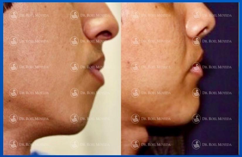 307-cirugia-nariz-monterrey-rinoplastia-roel-moyeda Mentoplastia Caso #2: Implante de Mentón