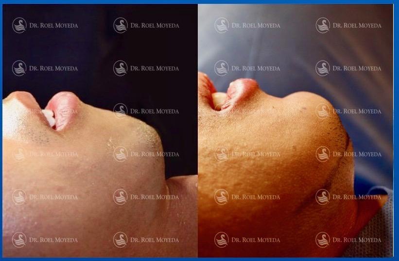 308-cirugia-nariz-monterrey-rinoplastia-roel-moyeda Mentoplastia Caso #3: Implante de Mentón