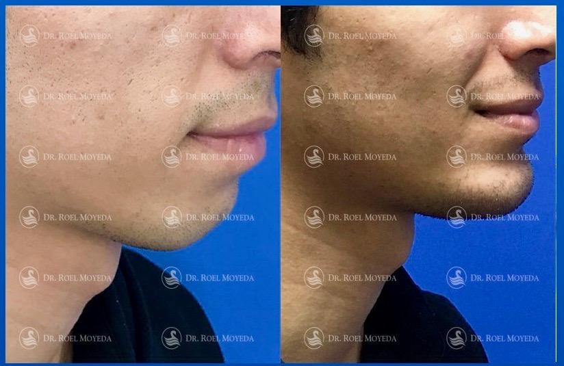 309-cirugia-nariz-monterrey-rinoplastia-roel-moyeda Mentoplastia Caso #4: Implante de Mentón