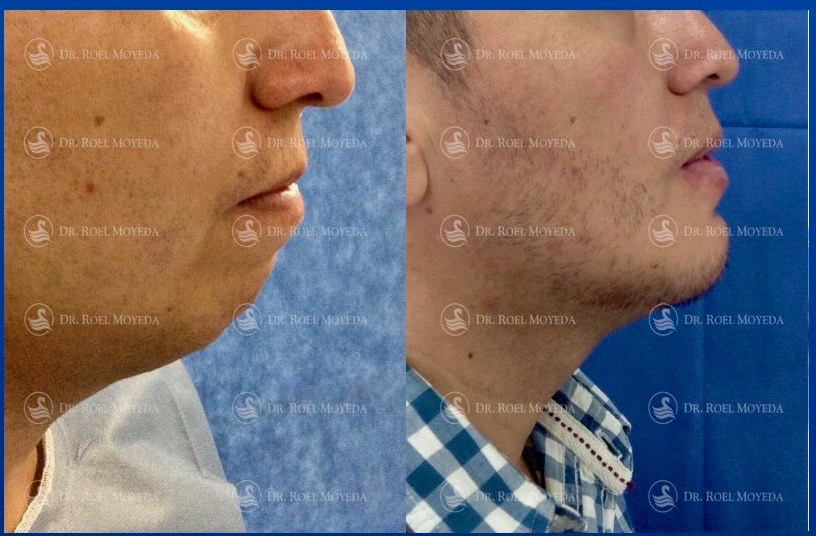 310-cirugia-nariz-monterrey-rinoplastia-roel-moyeda Mentoplastia Caso #5: Implante de Mentón