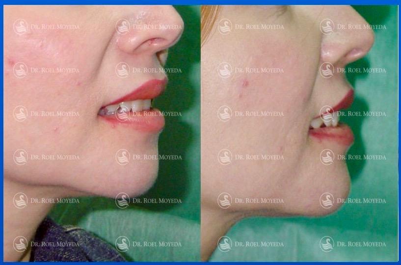 311-cirugia-nariz-monterrey-rinoplastia-roel-moyeda Mentoplastia Caso #6: Implante de Mentón