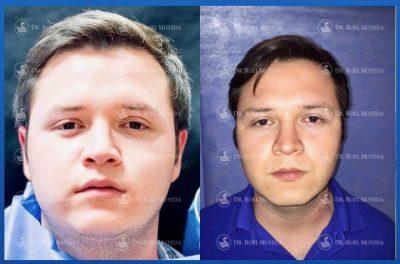 313-cirugia-nariz-monterrey-rinoplastia-roel-moyeda-400x264 Casos de Mejillas (Bolsas de Bichat)