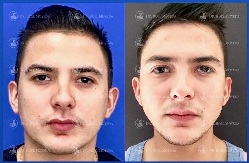 314-cirugia-nariz-monterrey-rinoplastia-roel-moyeda Rinomodelación en Monterrey
