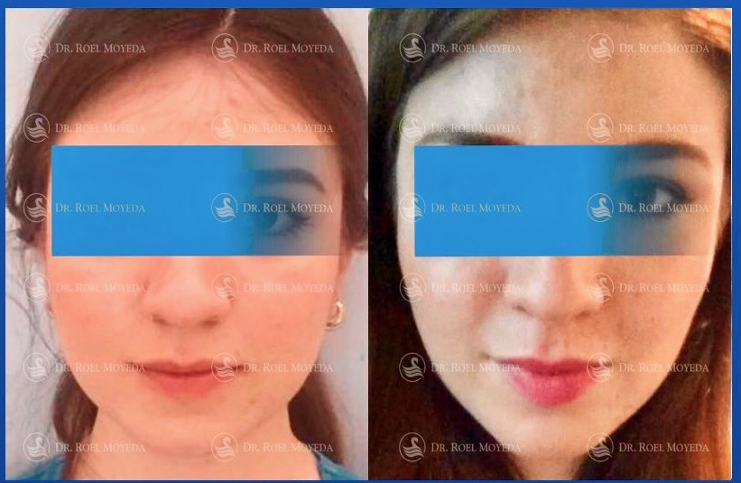315-cirugia-nariz-monterrey-rinoplastia-roel-moyeda Mejillas Caso #4: Cirugía de Bichat